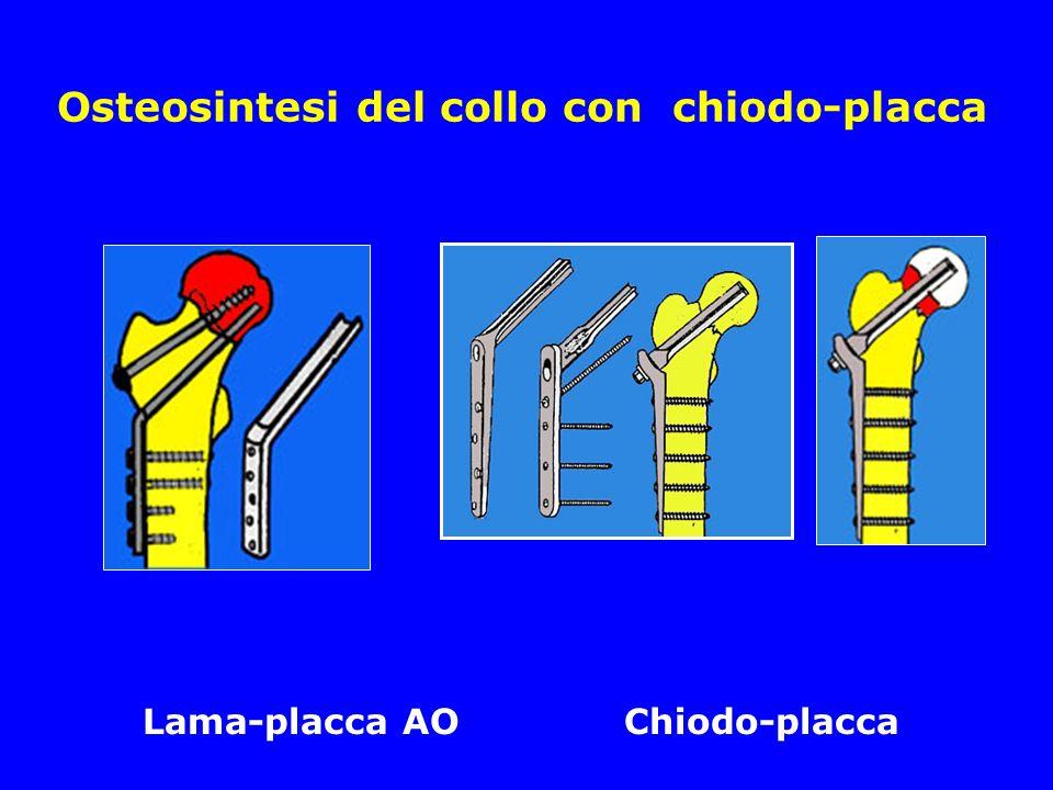 Osteosintesi del collo con chiodo-placca Lama-placca AO Chiodo-placca