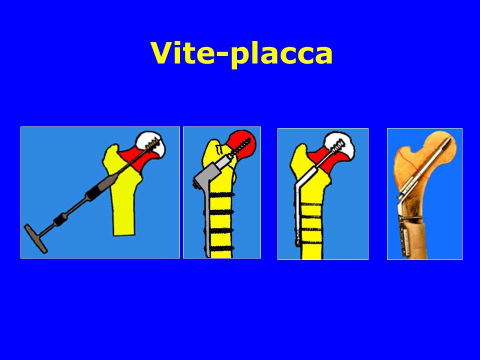 Vite-placca