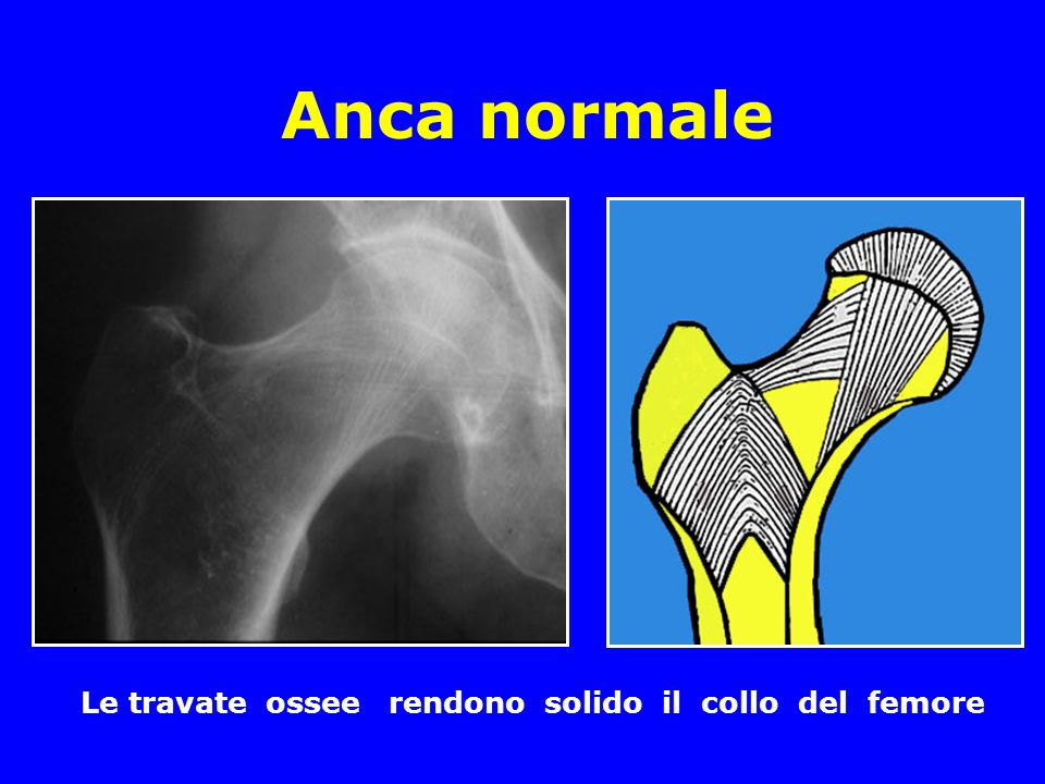 Anca normale Le travate ossee rendono solido il collo del femore