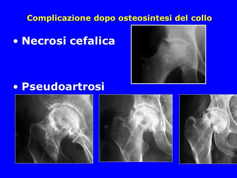 Complicazione dopo osteosintesi del collo Necrosi cefalica Pseudoartrosi
