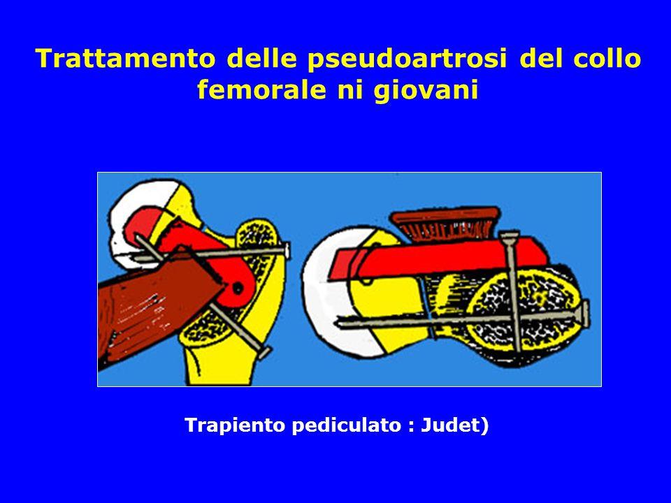 Trattamento delle pseudoartrosi del collo femorale ni giovani Trapiento pediculato : Judet)