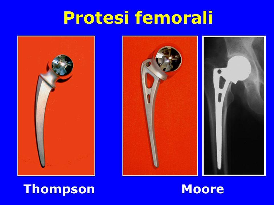 Protesi femorali Thompson Moore