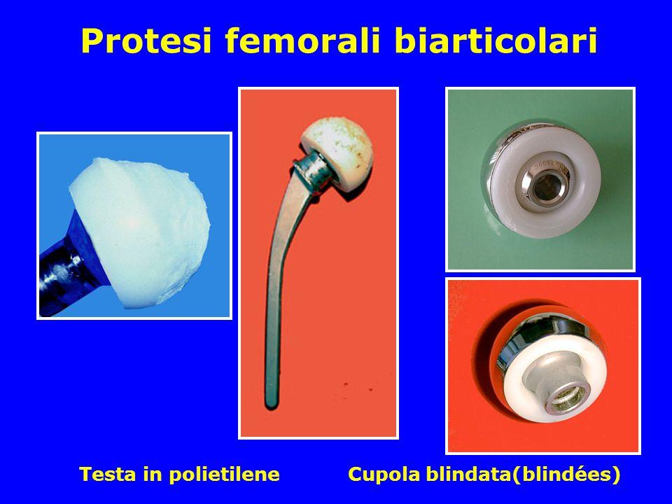Protesi femorali biarticolari Testa in polietilene Cupola blindata(blindées)