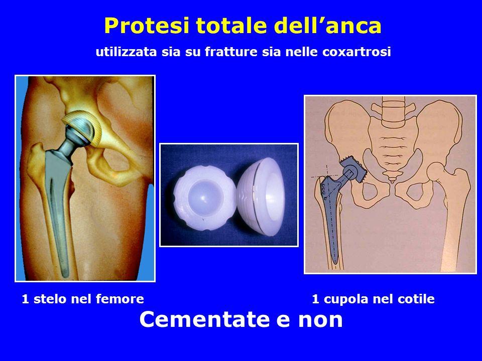 Protesi totale dellanca utilizzata sia su fratture sia nelle coxartrosi 1 stelo nel femore 1 cupola nel cotile Cementate e non