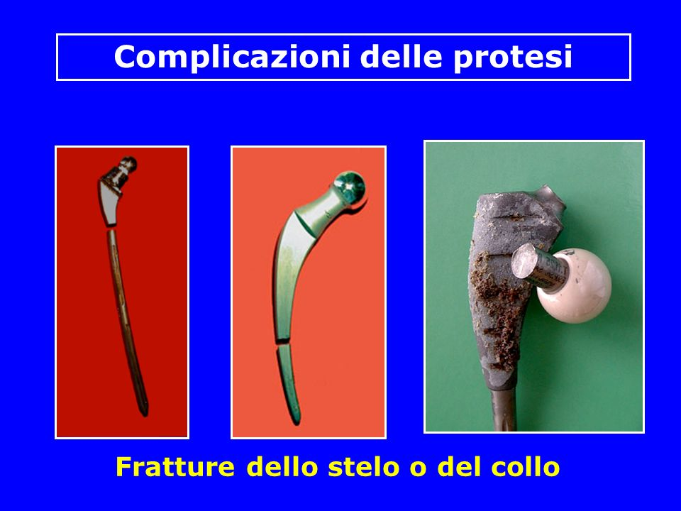 Fratture dello stelo o del collo Complicazioni delle protesi