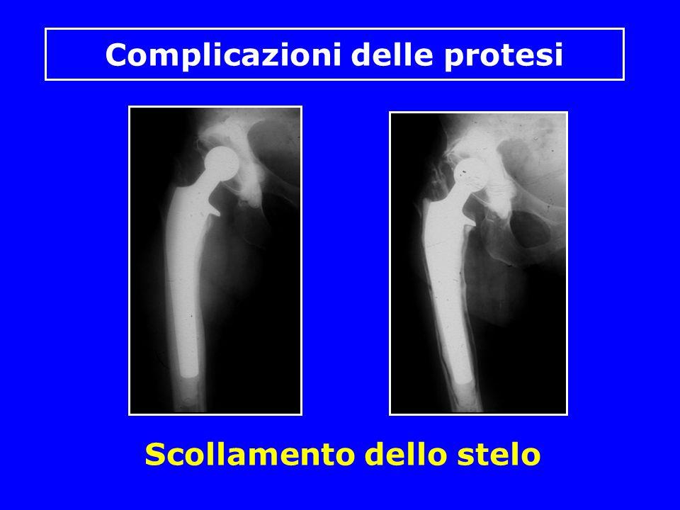 Scollamento dello stelo Complicazioni delle protesi