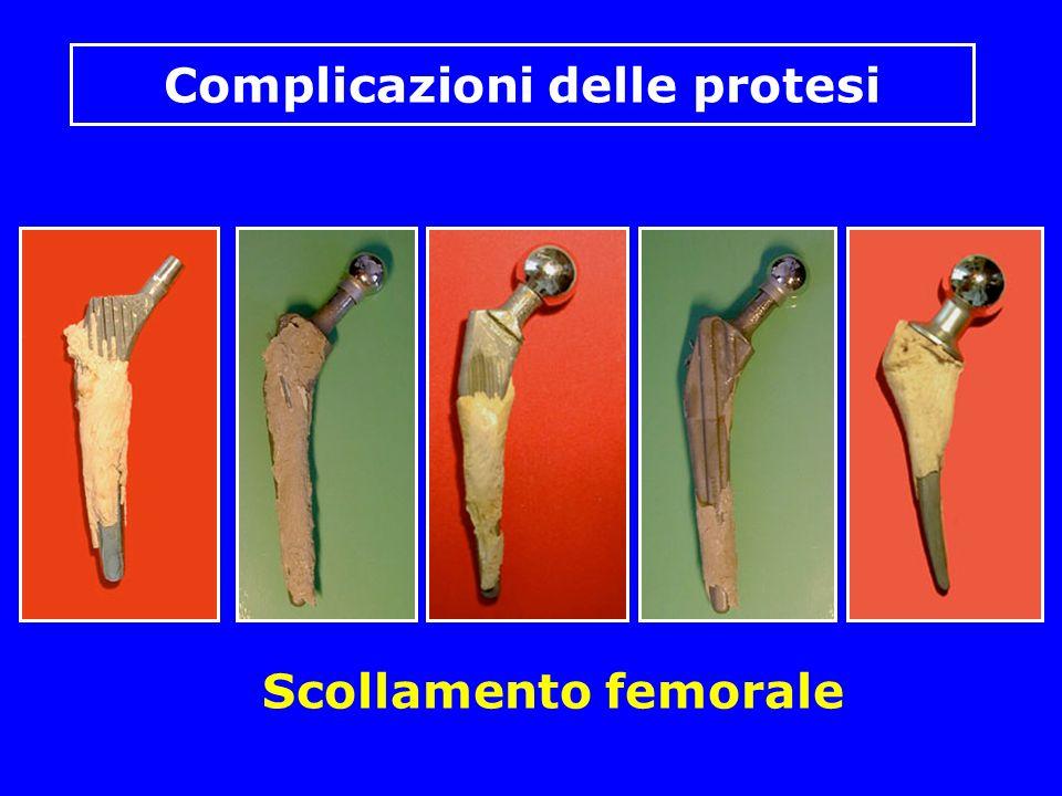 Scollamento femorale Complicazioni delle protesi