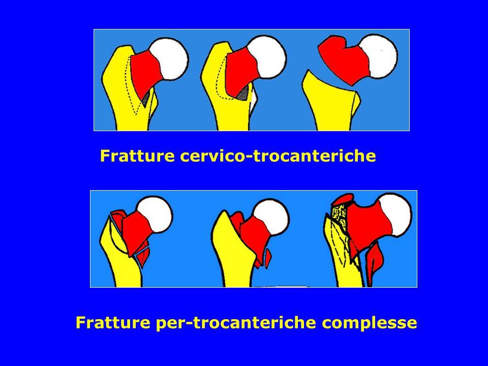 Fratture cervico-trocanteriche Fratture per-trocanteriche complesse