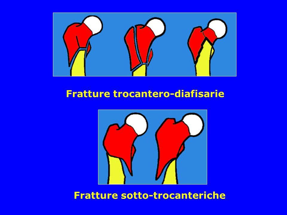 Fratture trocantero-diafisarie Fratture sotto-trocanteriche