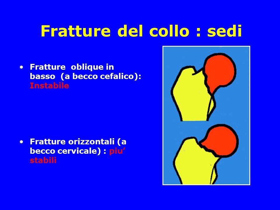 Fratture del collo : sedi Fratture oblique in basso (a becco cefalico): Instabile Fratture orizzontali (a becco cervicale) : piu stabili