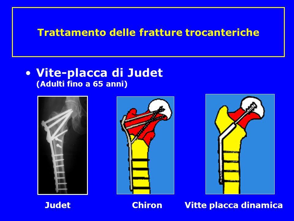 Trattamento delle fratture trocanteriche Vite-placca di Judet (Adulti fino a 65 anni) Judet Chiron Vitte placca dinamica