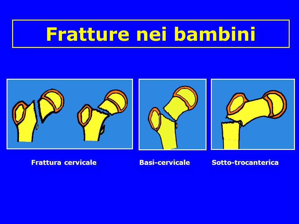 Fratture nei bambini Frattura cervicale Basi-cervicale Sotto-trocanterica