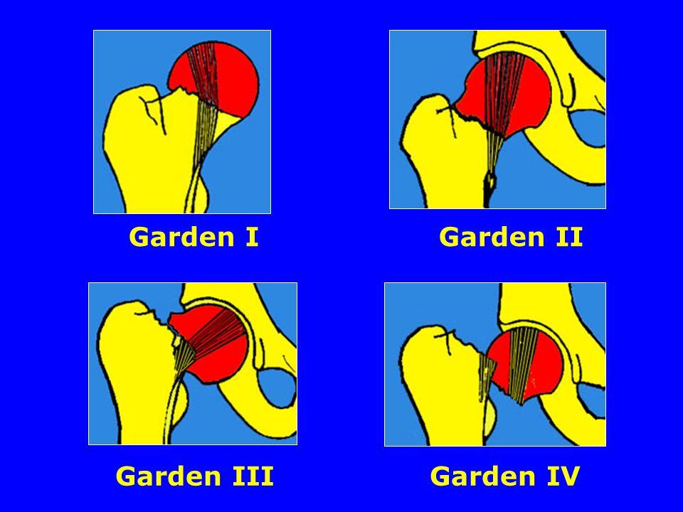 Garden I Garden II Garden III Garden IV