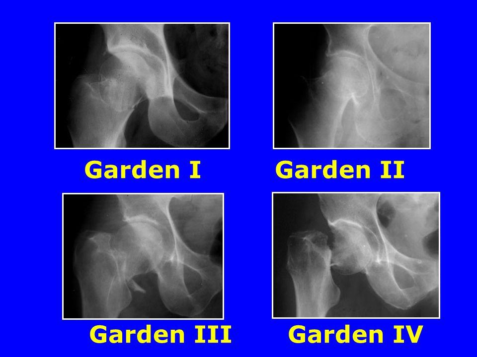 Garden IGarden II Garden III Garden IV