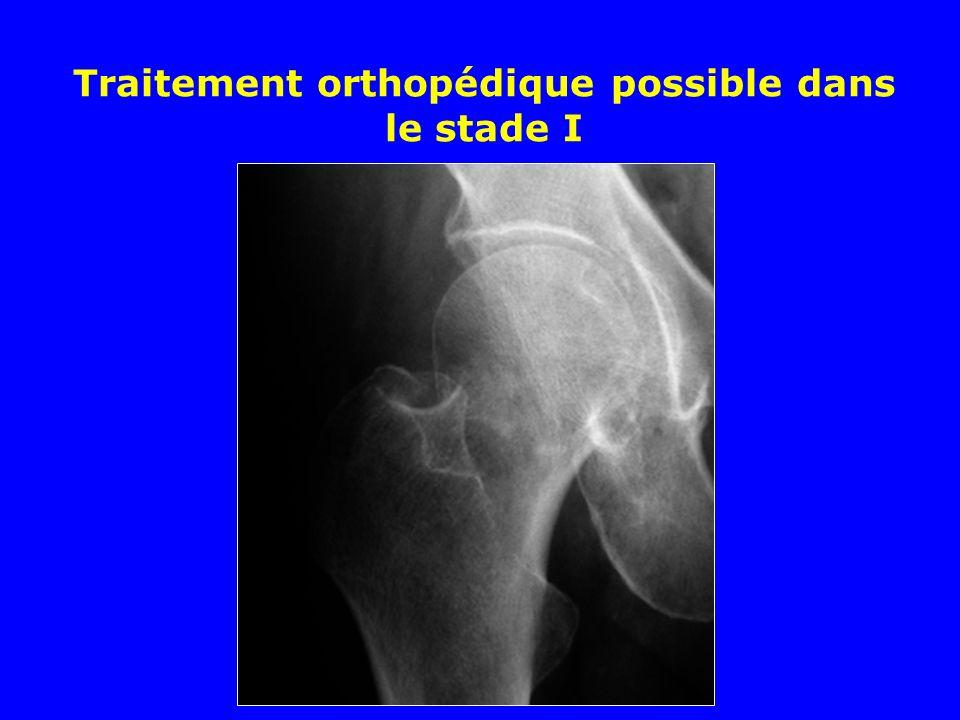 Traitement orthopédique possible dans le stade I
