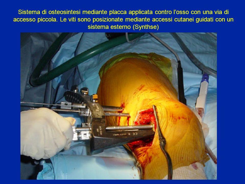 Sistema di osteosintesi mediante placca applicata contro losso con una via di accesso piccola.
