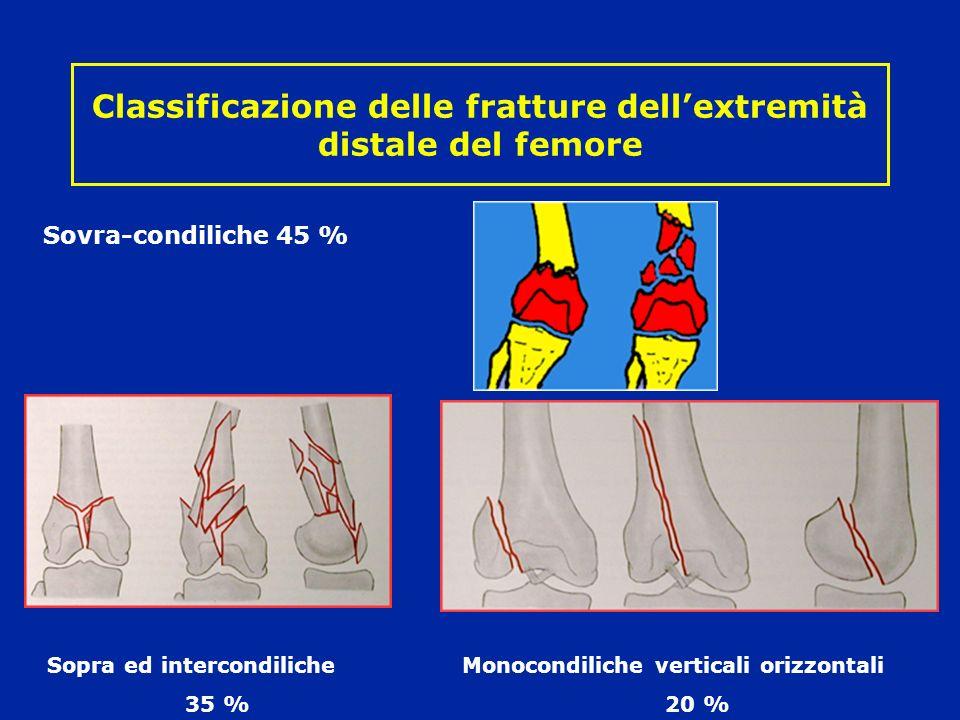 Classificazione delle fratture dellextremità distale del femore Sopra ed intercondiliche Monocondiliche verticali orizzontali 35 %20 % Sovra-condiliche 45 %