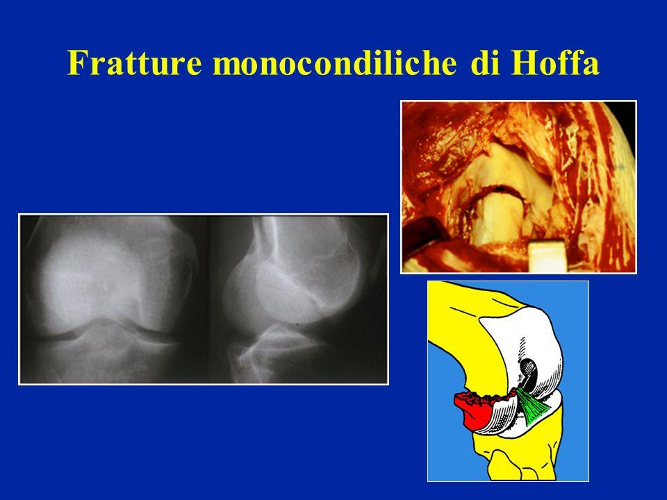 Fratture monocondiliche di Hoffa