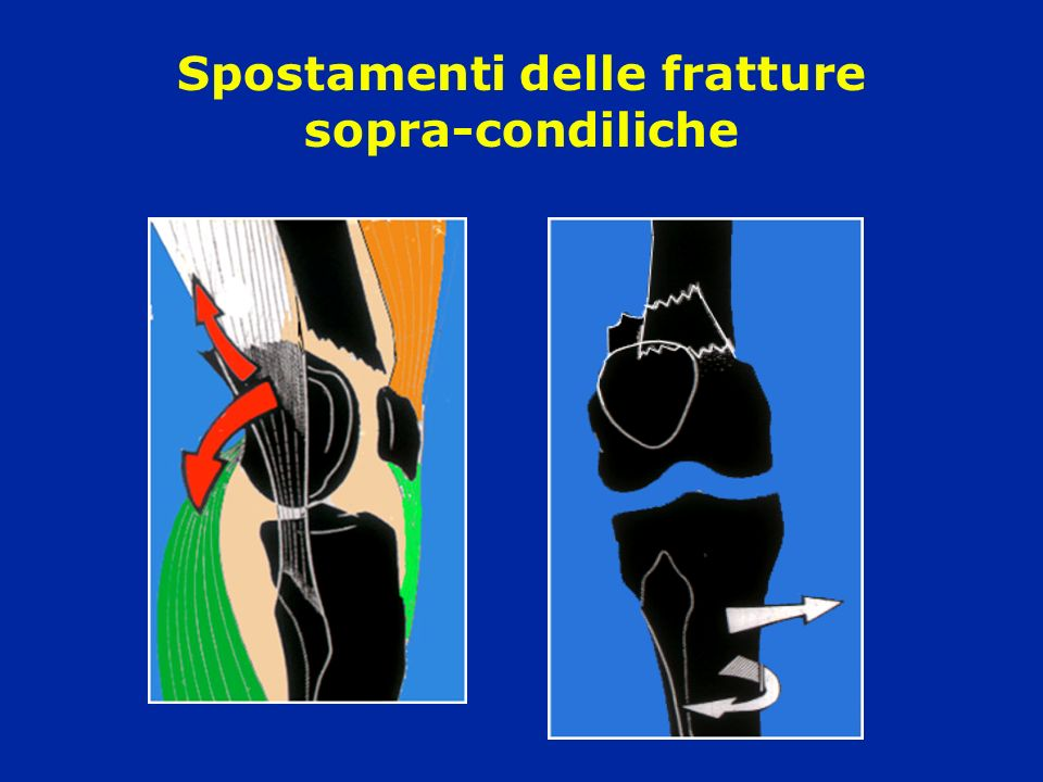 Frattura sovra e intercondiloidea Frattura comminuta articolare