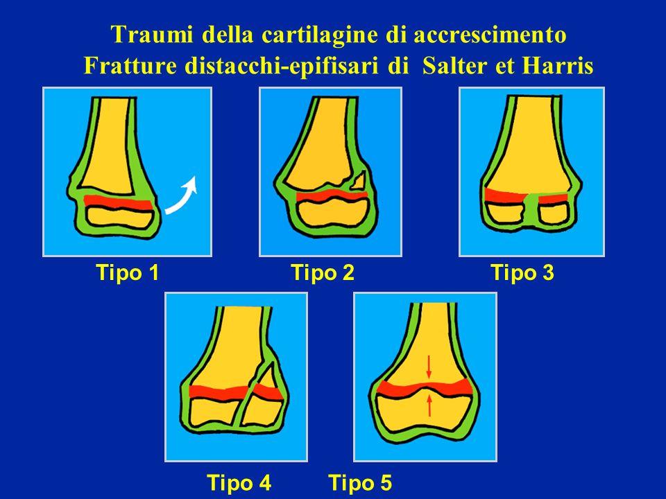 Traumi della cartilagine di accrescimento Fratture distacchi-epifisari di Salter et Harris Tipo 1 Tipo 2 Tipo 3 Tipo 4 Tipo 5