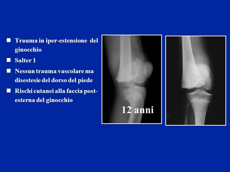 Trauma in iper-estensione del ginocchio Salter 1 Nessun trauma vascolare ma disestesie del dorso del piede Rischi cutanei alla faccia post- esterna del ginocchio 12 anni