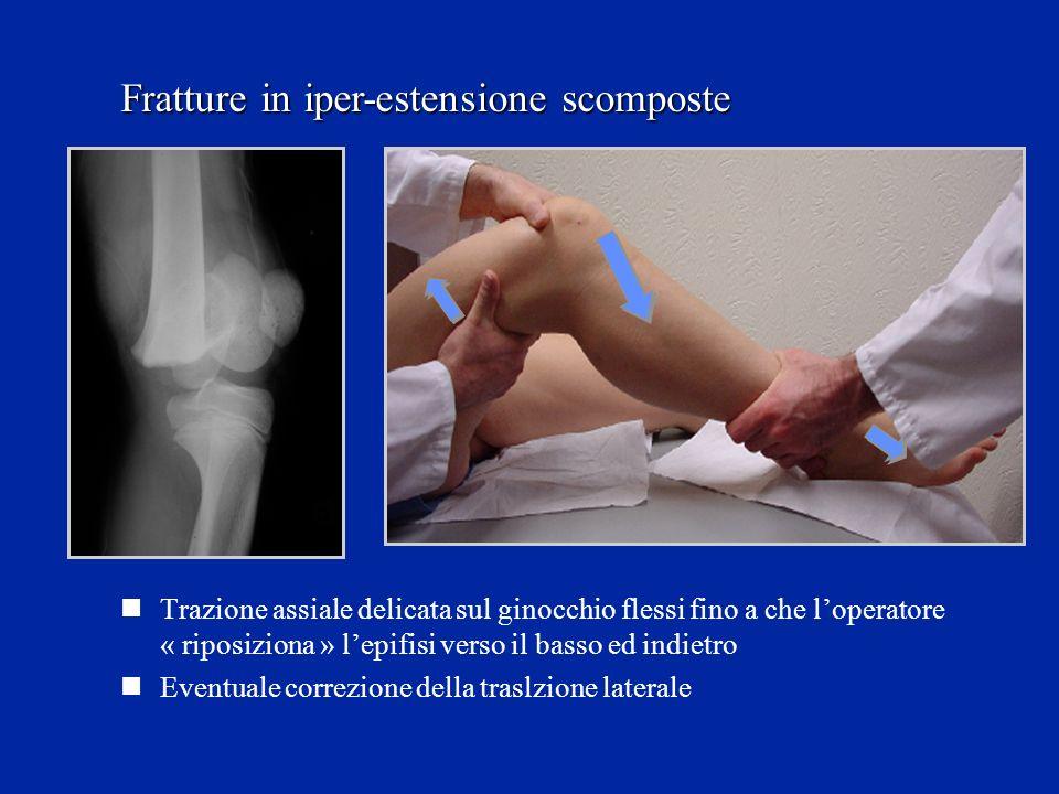Trazione assiale delicata sul ginocchio flessi fino a che loperatore « riposiziona » lepifisi verso il basso ed indietro Eventuale correzione della traslzione laterale Fratture in iper-estensione scomposte