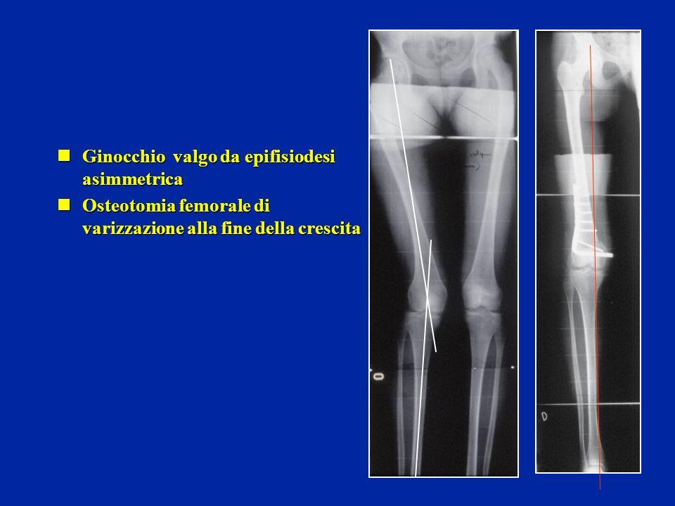 Ginocchio valgo da epifisiodesi asimmetrica Ginocchio valgo da epifisiodesi asimmetrica Osteotomia femorale di varizzazione alla fine della crescita Osteotomia femorale di varizzazione alla fine della crescita