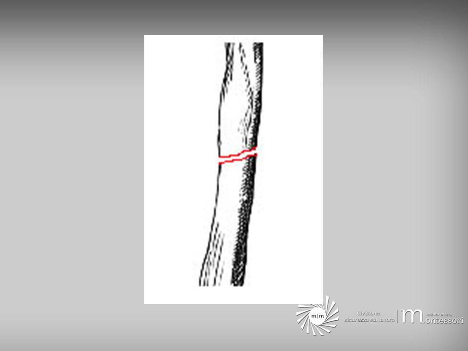 Come riconoscerle gonfiore, dolore intenso nella zona di frattura incremento del dolore con il movimento deformazione della parte colpita esposizione dei monconi ossi, se frattura aperta gli arti fratturati si presentano di solito accorciati e in posizione anomala rispetto allasse del corpo Una lesione scheletrica è a rischio per la vita se associata ad una emorragia importante