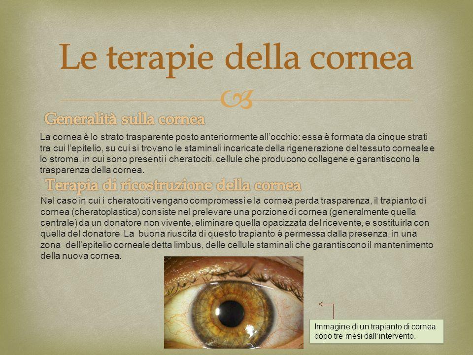 La cornea è lo strato trasparente posto anteriormente allocchio: essa è formata da cinque strati tra cui lepitelio, su cui si trovano le staminali inc