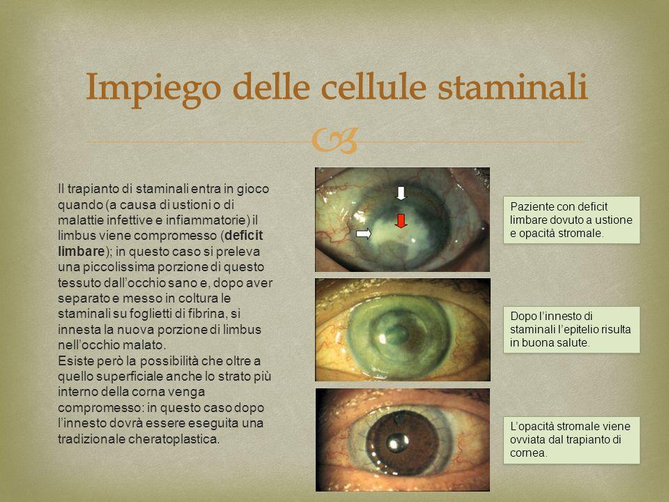 Il trapianto di staminali entra in gioco quando (a causa di ustioni o di malattie infettive e infiammatorie) il limbus viene compromesso (deficit limb