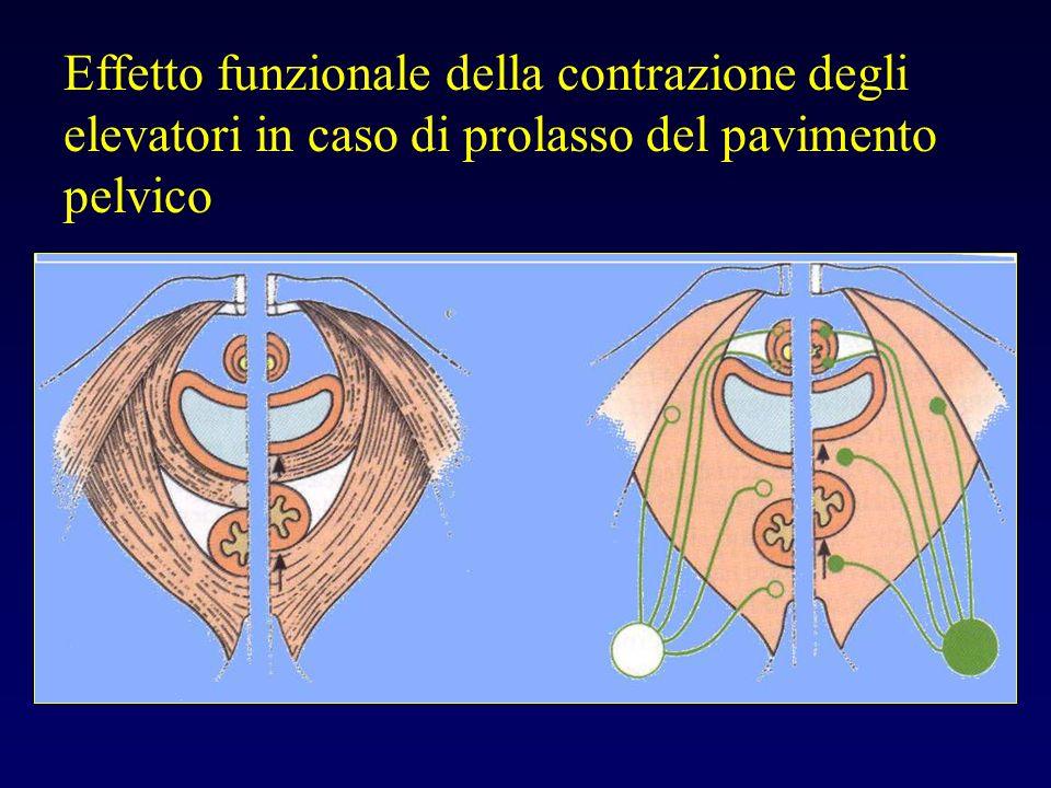 Effetto funzionale della contrazione degli elevatori in caso di prolasso del pavimento pelvico