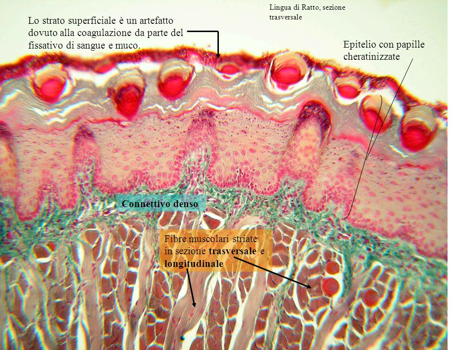 Epitelio con papille cheratinizzate Connettivo denso Fibre muscolari striate in sezione trasversale e longitudinale Lo strato superficiale è un artefa