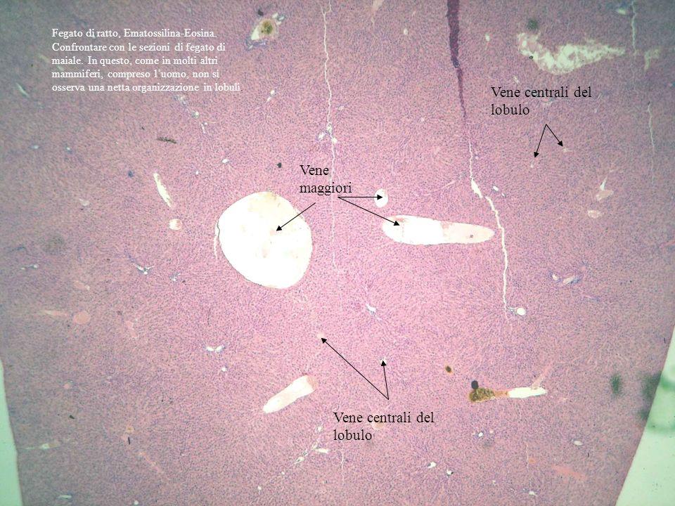 Vene maggiori Vene centrali del lobulo Fegato di ratto, Ematossilina-Eosina. Confrontare con le sezioni di fegato di maiale. In questo, come in molti