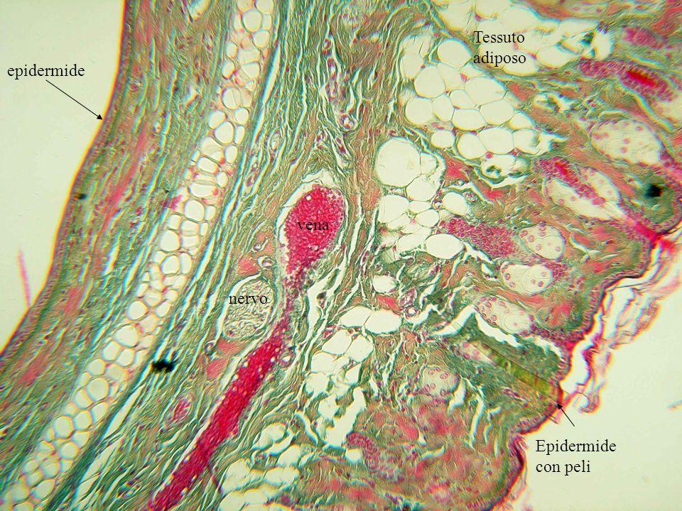 Follicoli piliferi con ghiandole sebacee associate