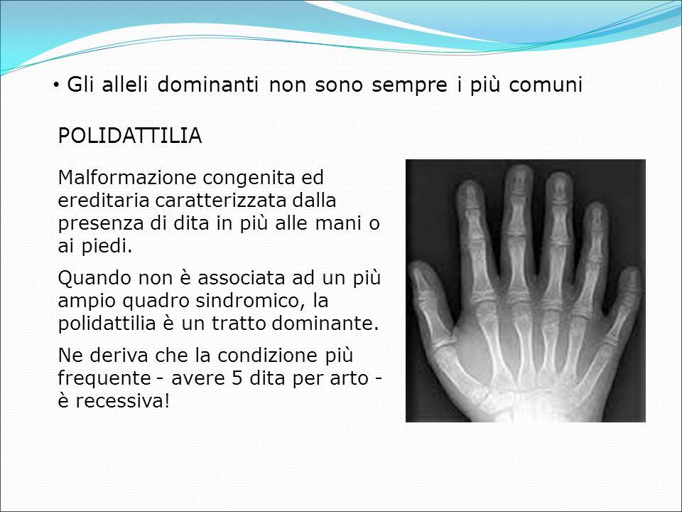 Gli alleli dominanti non sono sempre i più comuni POLIDATTILIA Malformazione congenita ed ereditaria caratterizzata dalla presenza di dita in più alle mani o ai piedi.