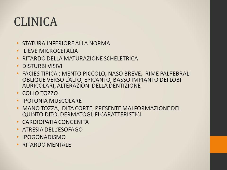 CLINICA STATURA INFERIORE ALLA NORMA LIEVE MICROCEFALIA RITARDO DELLA MATURAZIONE SCHELETRICA DISTURBI VISIVI FACIES TIPICA : MENTO PICCOLO, NASO BREVE, RIME PALPEBRALI OBLIQUE VERSO L'ALTO, EPICANTO, BASSO IMPIANTO DEI LOBI AURICOLARI, ALTERAZIONI DELLA DENTIZIONE COLLO TOZZO IPOTONIA MUSCOLARE MANO TOZZA, DITA CORTE, PRESENTE MALFORMAZIONE DEL QUINTO DITO, DERMATOGLIFI CARATTERISTICI CARDIOPATIA CONGENITA ATRESIA DELL'ESOFAGO IPOGONADISMO RITARDO MENTALE
