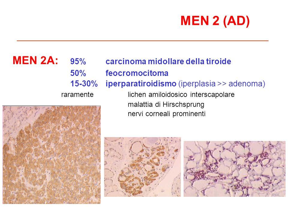 MEN 2 (AD) MEN 2A: 95% carcinoma midollare della tiroide 50% feocromocitoma 15-30% iperparatiroidismo (iperplasia >> adenoma) raramentelichen amiloido