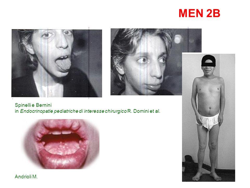 MEN1 IVS3+1G>A MEN1 p.Lys557X Carcinoide mediastino 36 Tumore endocrino Pancreas 39