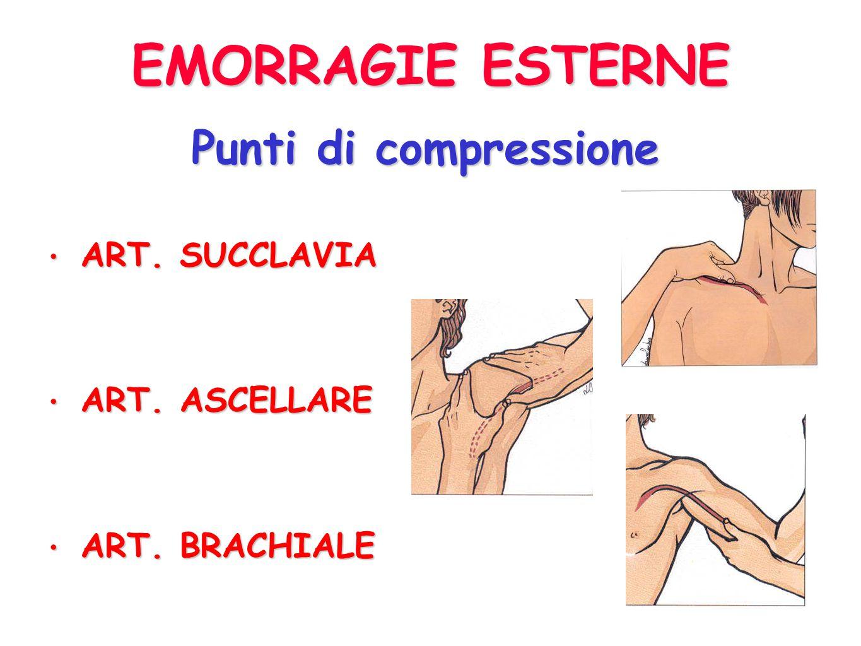 4) 4) PUNTI DI COMPRESSIONE: comprimere selettivamente larteria a monte del punto di anguinamento EMORRAGIE ESTERNE