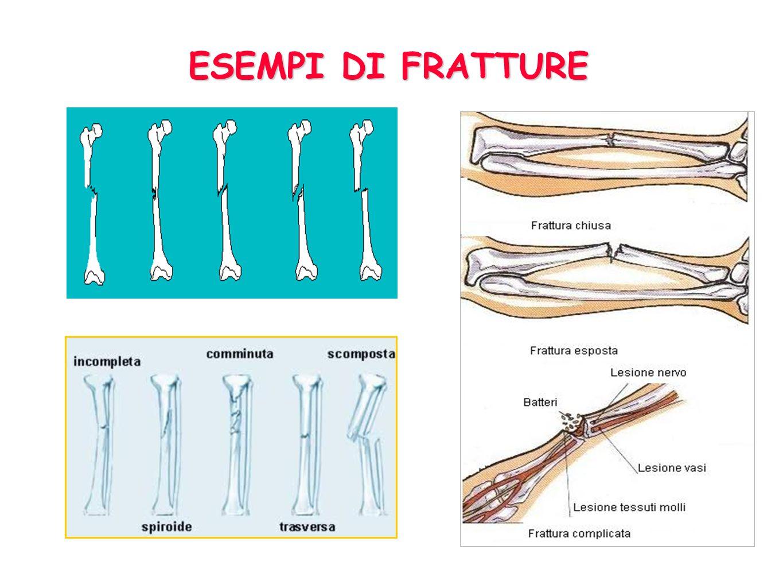 Rottura di un osso causata da una forza tale che supera la resistenza dellosso stesso Frattura composta, senza spostamento dei monconi Frattura compos