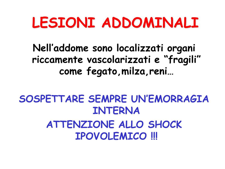 LESIONI ADDOMINALI Classificazione LESIONI CHIUSE: LESIONI CHIUSE: dovute a traumi contusivi; possono provocare rotture di organi addominali e/o vasi