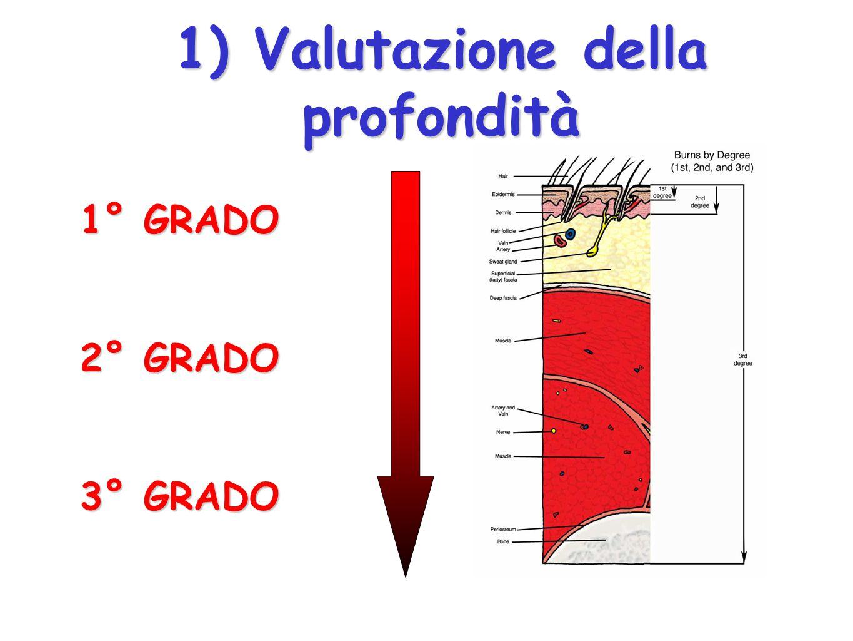 Criteri di valutazione 1) la profondità 2) l estensione 3) altri fattori di criticità (fonte, aree critiche, età, malattie preesistenti )USTIONI