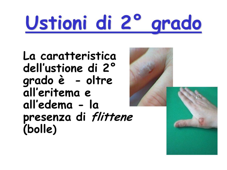 Ustioni di 1° grado Lustione di 1° grado ha come caratteristiche: leritema ledema