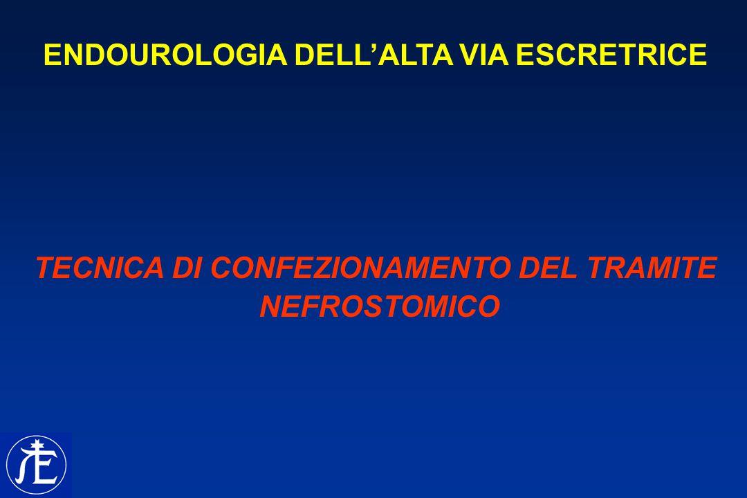 CHIRURGIA RENALE PERCUTANEA MANOVRE PRELIMINARI PAZIENTE IN POSIZIONE LITOTOMICA DORSALE POSIZIONAMENTO DI CATETERE URETERALE RETROGRADO (+/- PALLONCINO) + CAT.