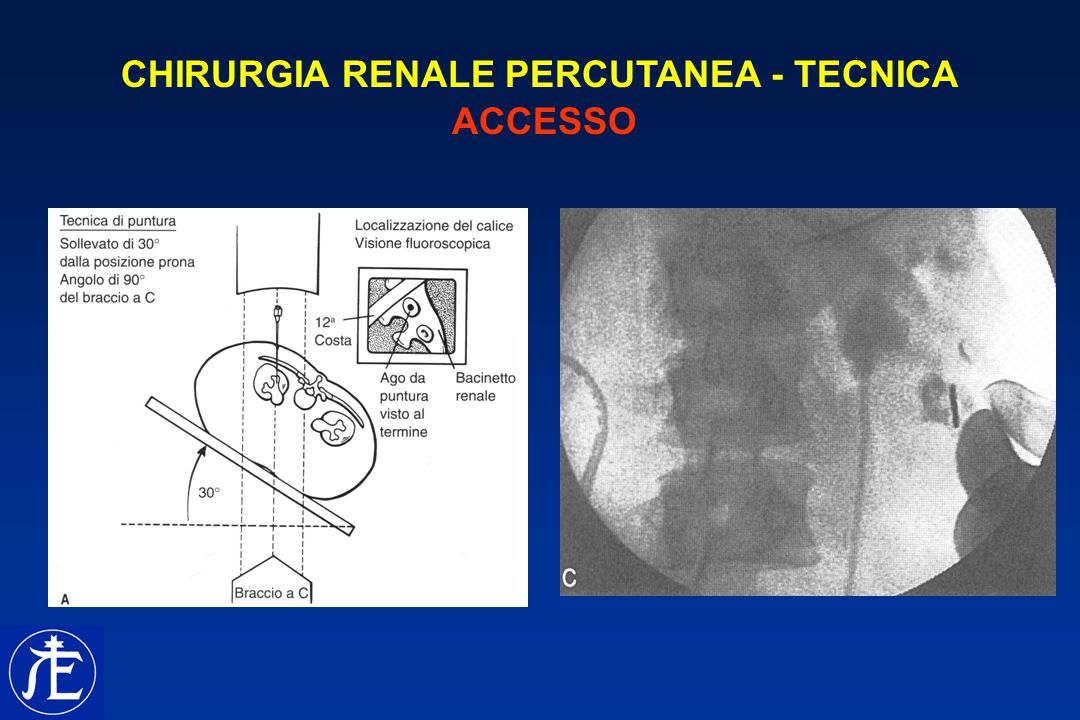 CHIRURGIA RENALE PERCUTANEA - TECNICA ACCESSO