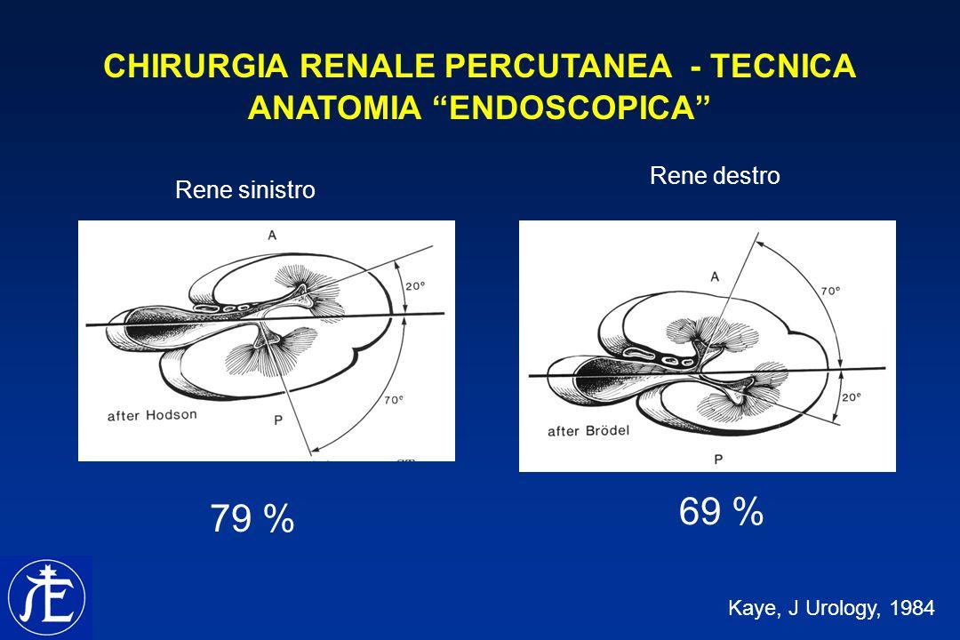 CHIRURGIA RENALE PERCUTANEA - TECNICA ANATOMIA ENDOSCOPICA Kaye, J Urology, 1984 Rene sinistro Rene destro 79 % 69 %