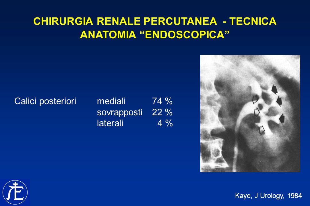 CHIRURGIA RENALE PERCUTANEA - TECNICA ANATOMIA ENDOSCOPICA Kaye, J Urology, 1984 Calici posteriorimediali 74 % sovrapposti 22 % laterali 4 %