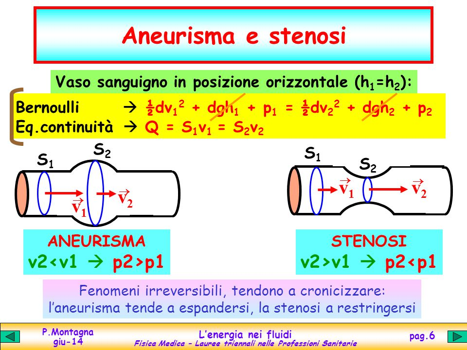 P.Montagna giu-14 Lenergia nei fluidi Fisica Medica – Lauree triennali nelle Professioni Sanitarie pag.6 S2S2 S1S1 v1v1 v2v2 Aneurisma e stenosi Vaso sanguigno in posizione orizzontale (h 1 =h 2 ): Bernoulli ½dv 1 2 + dgh 1 + p 1 = ½dv 2 2 + dgh 2 + p 2 Eq.continuità Q = S 1 v 1 = S 2 v 2 S2S2 S1S1 v1v1 v2v2 ANEURISMA v2 p1 STENOSI v2>v1 p2<p1 Fenomeni irreversibili, tendono a cronicizzare: laneurisma tende a espandersi, la stenosi a restringersi