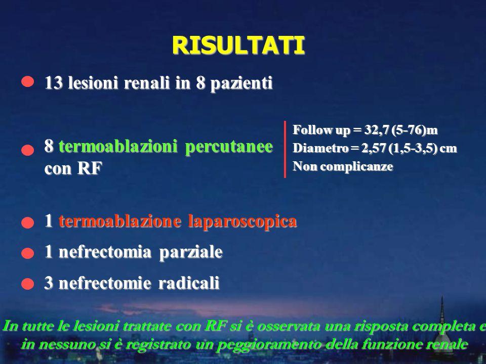13 lesioni renali in 8 pazienti 8 termoablazioni percutanee con RF 1 termoablazione laparoscopica 1 nefrectomia parziale 3 nefrectomie radicali RISULTATI In tutte le lesioni trattate con RF si è osservata una risposta completa e in nessuno si è registrato un peggioramento della funzione renale Follow up = 32,7 (5-76)m Diametro = 2,57 (1,5-3,5) cm Non complicanze
