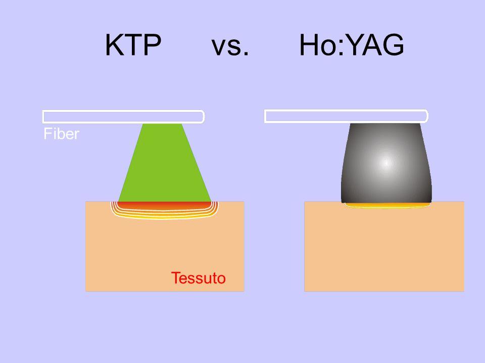 KTP vs. Ho:YAG Tessuto Fiber